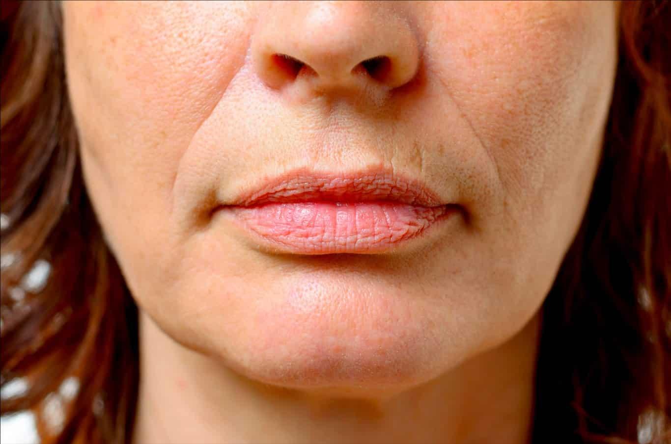como tirar rugas da boca,eliminar rugas ao redor da boca, rugas na boca